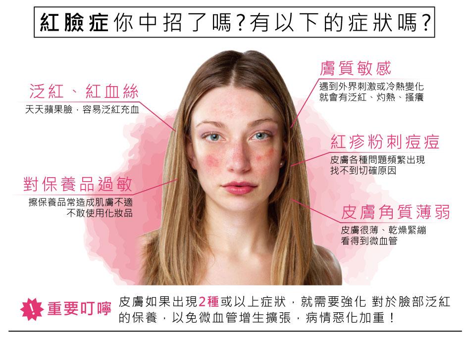 紅臉症你中招了嗎?泛紅、紅血絲、對保養品過敏、膚質敏感、紅疹粉刺痘痘、皮膚角質薄弱