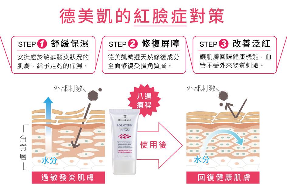 德美凱的紅臉症對策:1舒緩保濕,安撫受刺激的皮膚2.精選天然成分,修復屏障3.改善泛紅