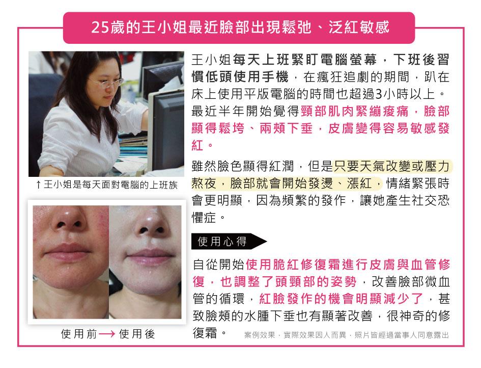臉部鬆弛、泛紅敏感,皮膚容易敏感泛紅